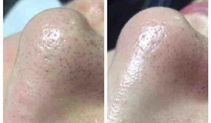 互动吧-日式毛孔角质管理~面部深层清洁补水收毛孔