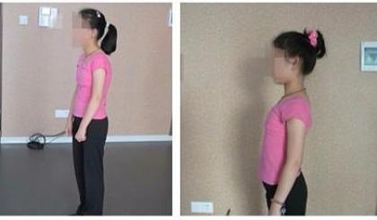 互动吧-学什么舞能改善矫正驼背 来南京Lavida舞蹈学校